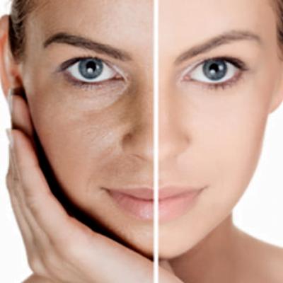 Glowry Cosmetic Photo Rejuvenation