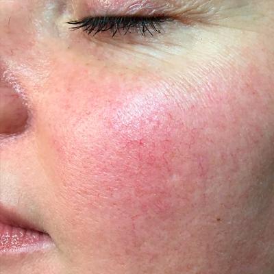Glowry Cosmetic Vein Treatment