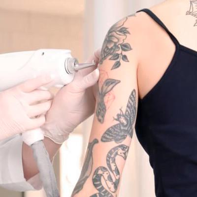 Glowry Cosmetic Tattoo Removal